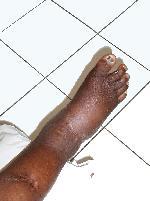 pied cubique de charcot